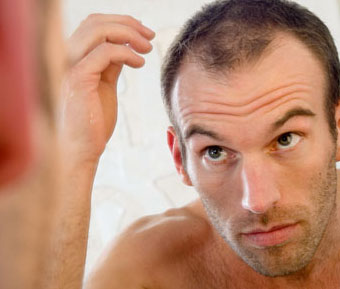hair-loss-due-to-stress